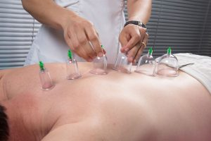 Cupping therapy, spa, woman doctor removes cups from the patient's back ultimatecarephysio